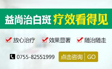 广东最专业的白癜风医院