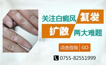 广东治疗白癜风专科医院