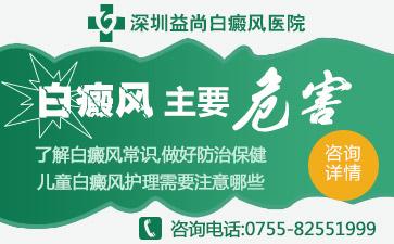 深圳白癜风发生时的表现是什么